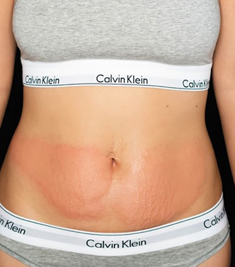 After Body Sculpting for Fat Loss, Cellulite Reduction, and Skin Toning | iCRYO
