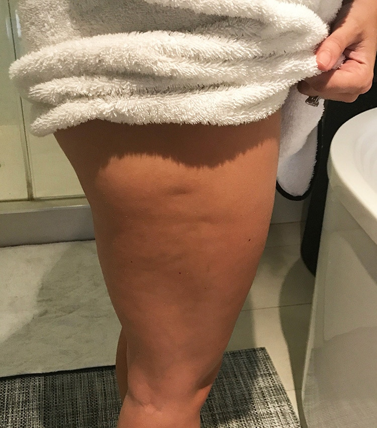 Before Body Sculpting for Fat Loss, Cellulite Reduction, and Skin Toning | iCRYO